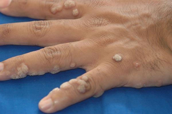 Skin Tag and Warts removal treatment in indirapuram